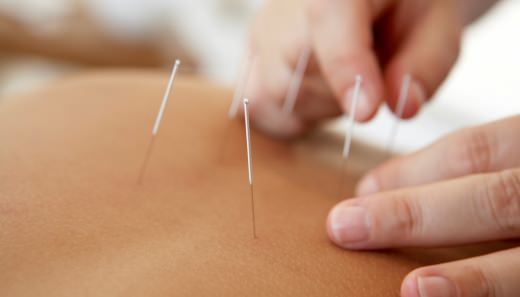 O que é acupuntura